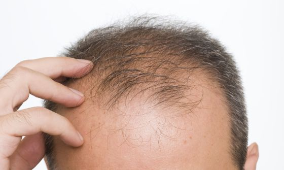 alopecia androgenetica dr pablo torcez