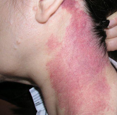 heangiomas-tratamiento