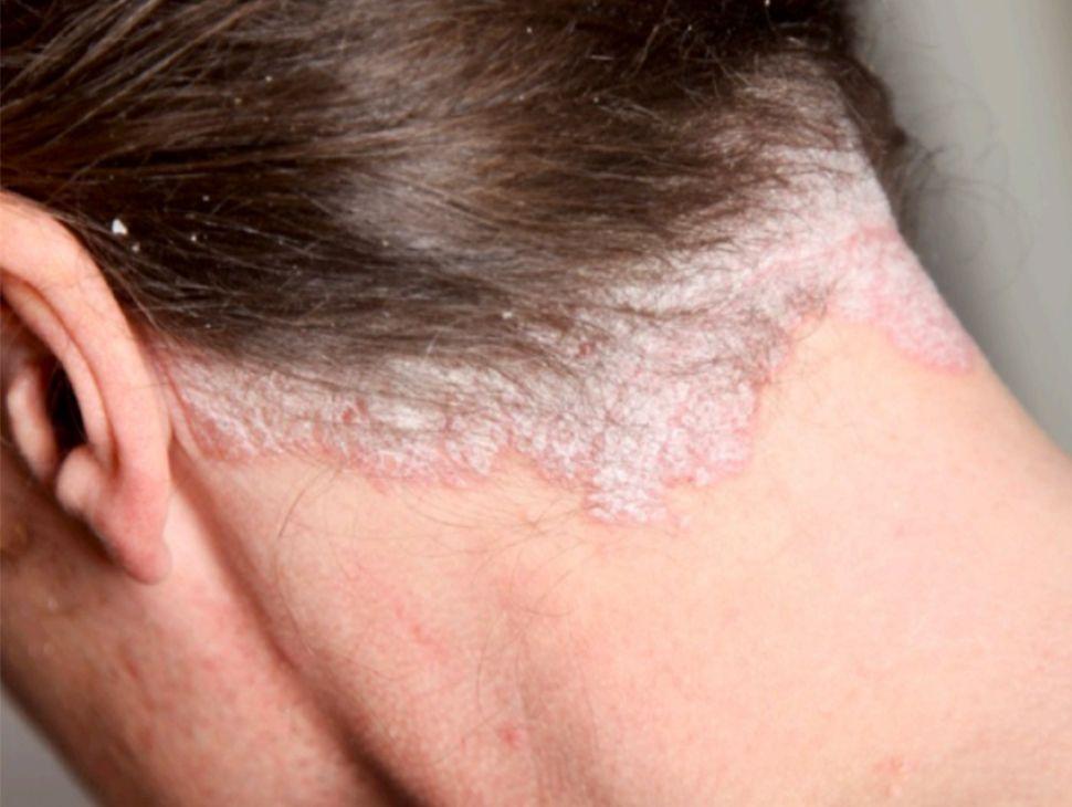 psoriasis-trataminto-dr-pablo-trochez