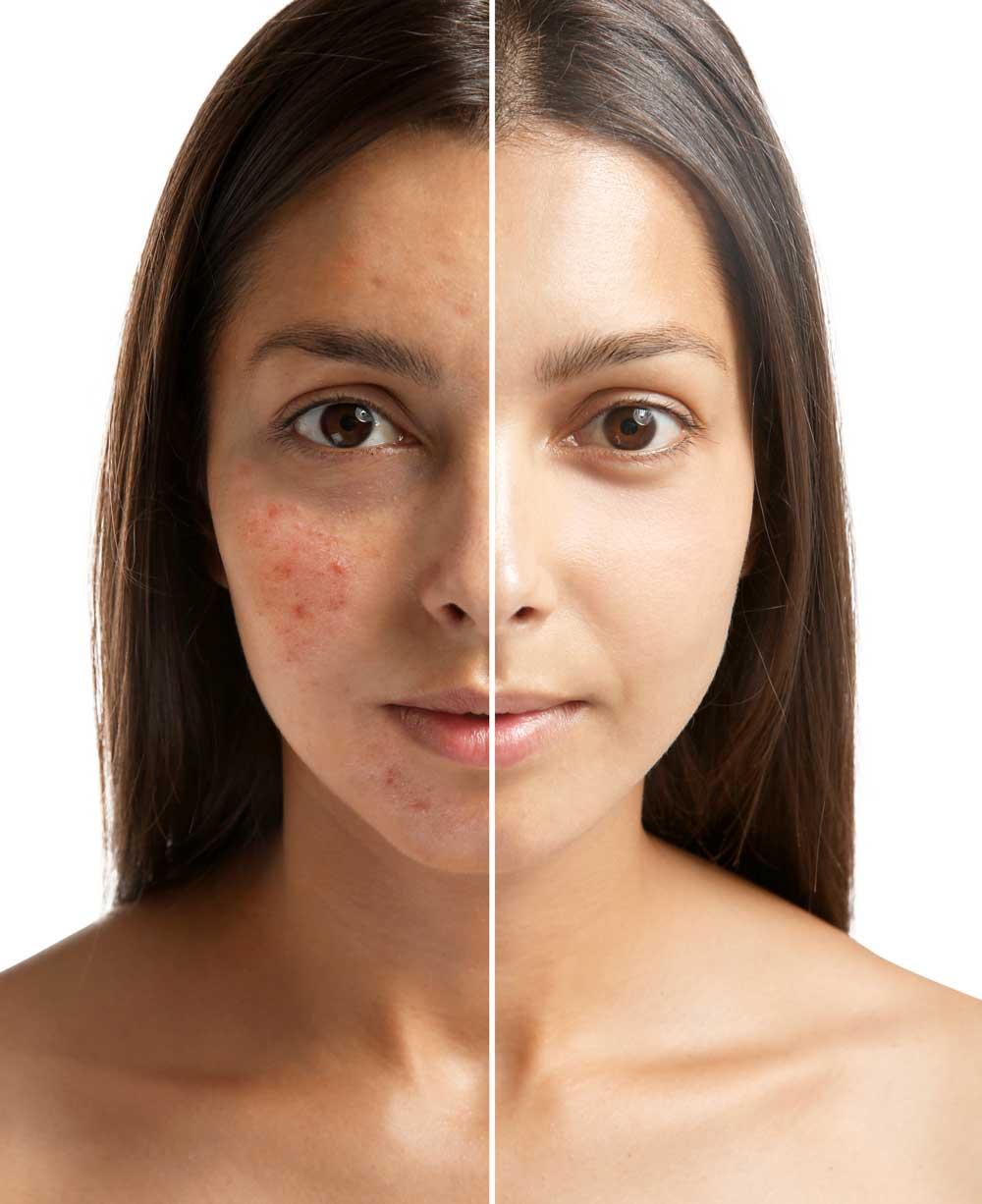 tratamiento acne dr pablo trocez