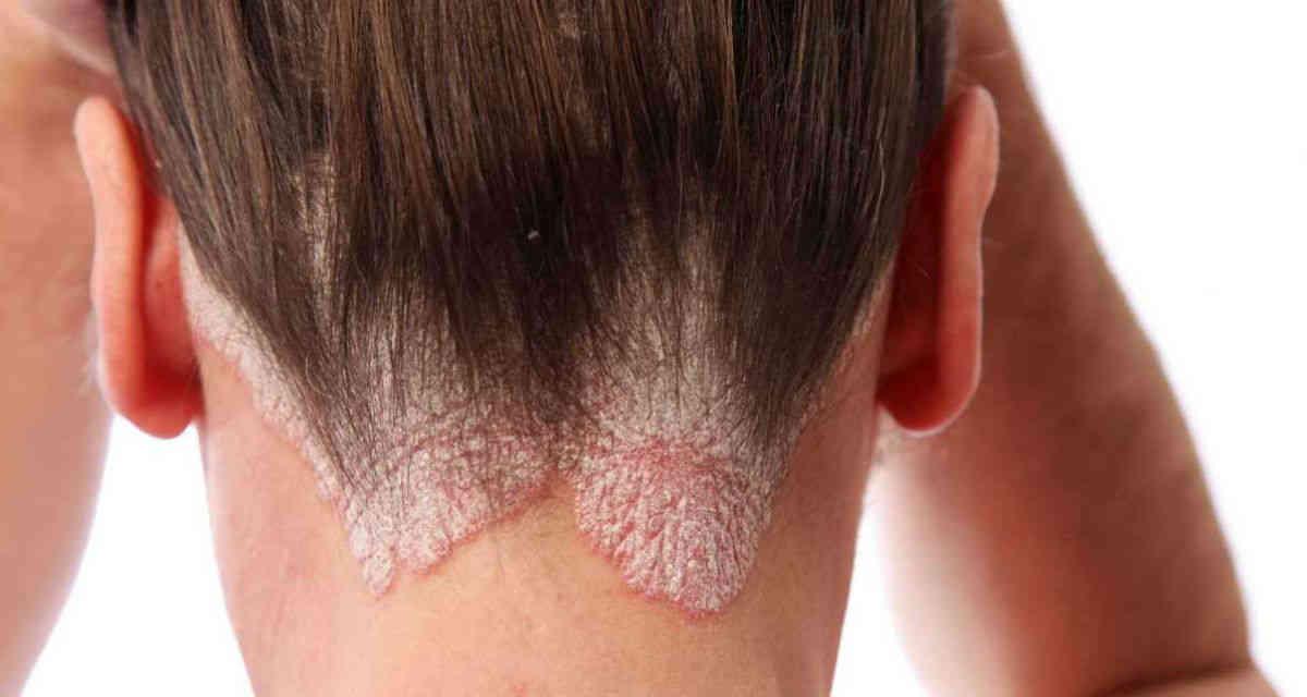 tratamiento para psoriasis en bogota